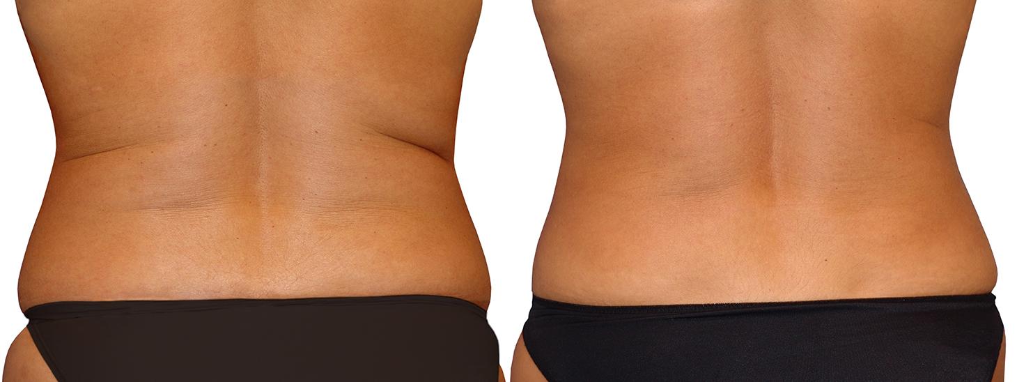 De y espalda abdomen lipo